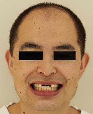 图2 患者微笑像.png