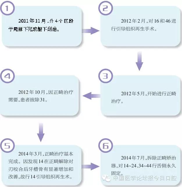 流程.webp.jpg