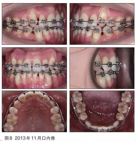 ss插成人_【临床实例】成人牙周病患者重度拥挤矫治病例